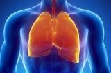 Phổi là cơ quan mềm yếu nhất của cơ thể, 4 món ăn bảo vệ phổi