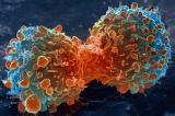 Những lựa chọn nào cho ung thư ngoài hóa trị?