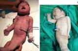 """Người phụ nữ Ấn Độ sinh ra em bé """"tiên cá"""" có số phận ngắn ngủi"""