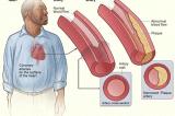 Xơ vữa động mạch: Nguyên nhân và cách phòng ngừa