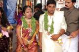 Cổ tích tình yêu: Chàng trai cưới cô bạn thân bị hủy toàn bộ khuôn mặt