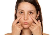 Làm cách nào để giảm thiểu bọng mắt và quầng thâm?